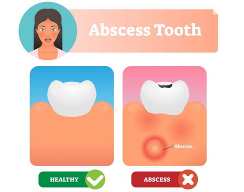 Abscess Tooth vs healthy tooth